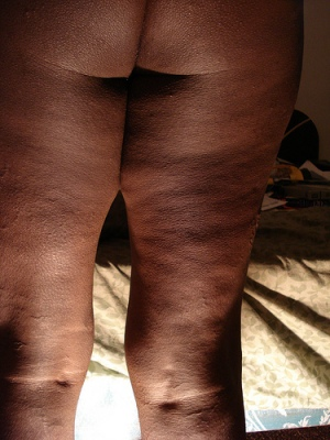 thigh cellulite